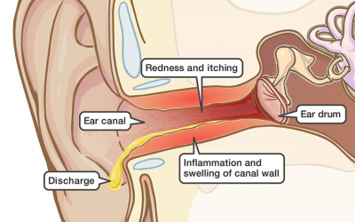 Swimmer's Ear:  An outer ear infection not just for swimmers!